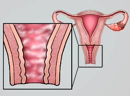 Какими путями молочница передается от женщины к мужчине