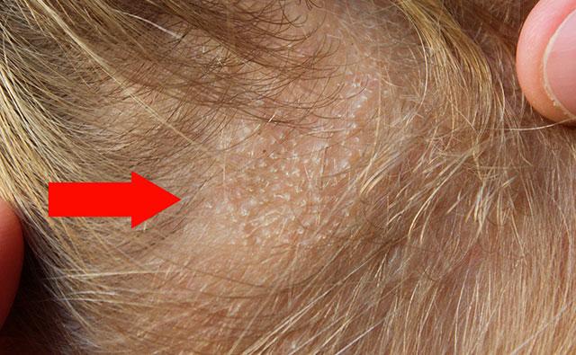 трихофития волосистой части головы