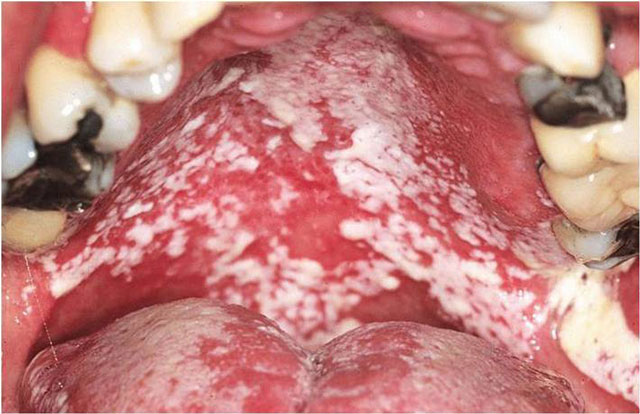 антибиотик-ассоциированный кандидоз ротовой полости
