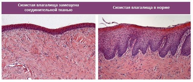 сравнение слизистой влагалища, замещенной соединительной тканью и слизистая в норме