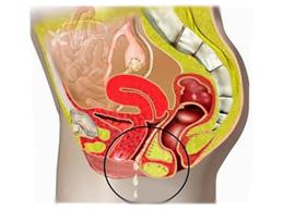 Все симптомы и признаки молочницы у женщин