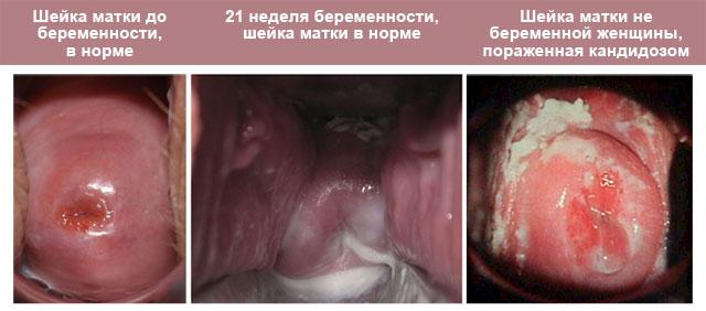 шейка матки при гинекологическом осмотре, схожесть выделений беременной женщины на 3 триместре и выделений из-за заражения кандидозом