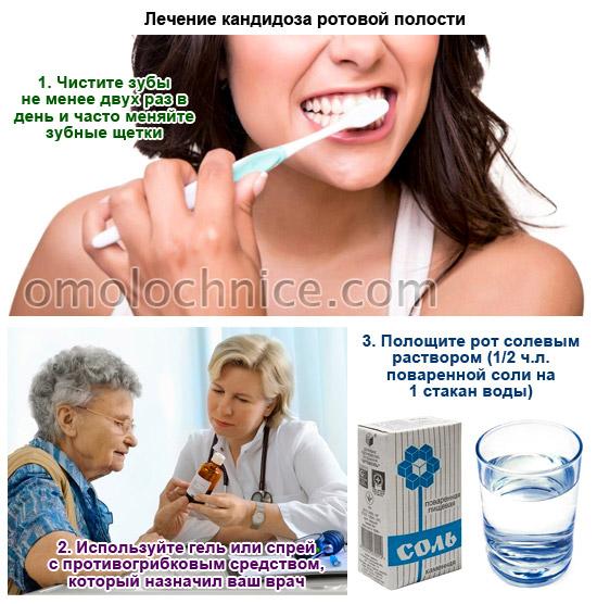 Молочница срочное лечение