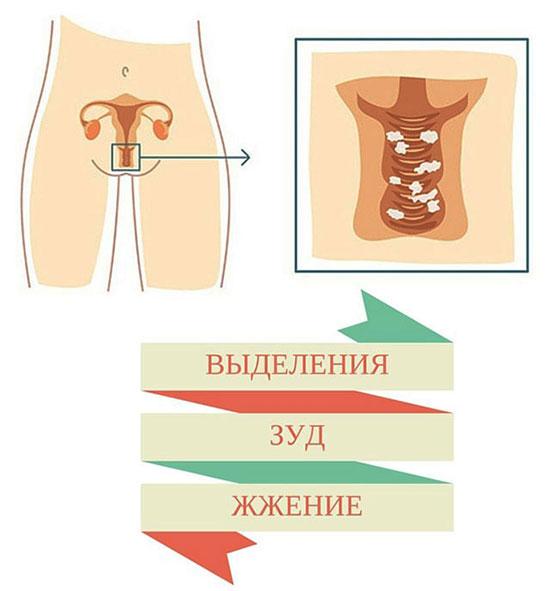 симптомы кандидоза (молочницы) у женщин