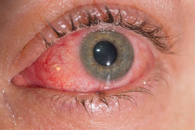 кандидозное поражение слизистой оболочки глаз
