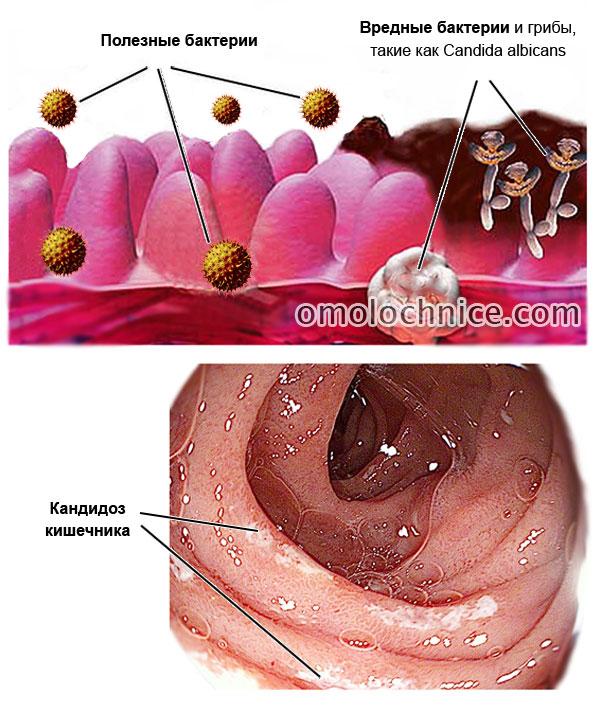 Как распознать кандидоз кишечника