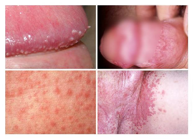 острые симптомы инфекции урогенитального кандидоза (молочницы)