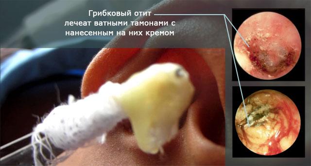 грибковый отит и его лечение ватными тампонами