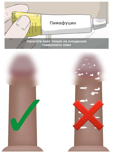 нанесение пимафуцина на поверхность кожи и слизистой полового члена