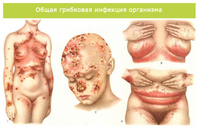 общая грибковая инфекция организма