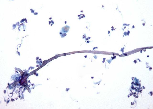 грибы рода кандида под микроскопом
