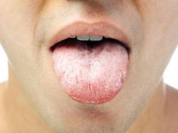 Кандидоз в ротовой полости: причины и лечение