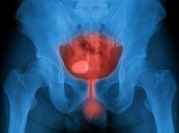 рентгеновский снимок мочевого пузыря мужчины с инфекцией мочеиспускательного канала и мочевого пузыря