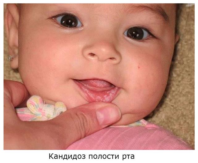 Кандидоз ротовой полости дети