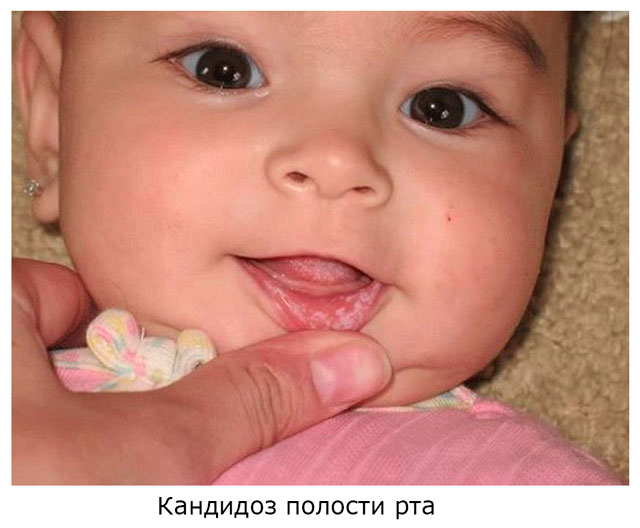 молочница у новорожденных во рту