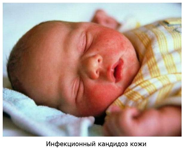 как выглядит инфекционный кандидоз кожи у новорожденных