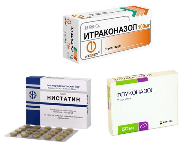 таблетки Флуконазол, Нистатин, Итраконазол