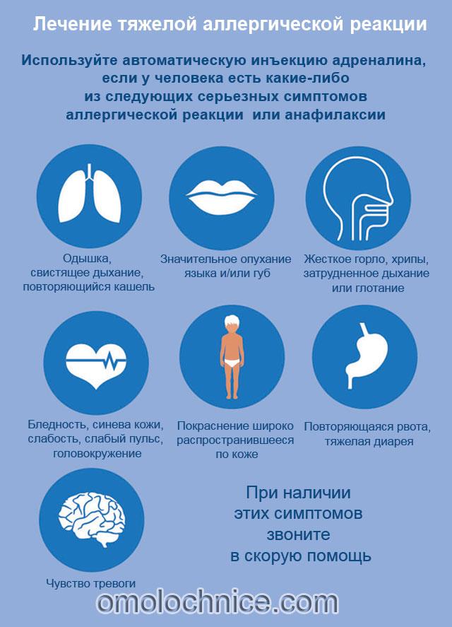 лечение тяжелой аллергии