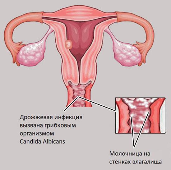 вагинальная молочница