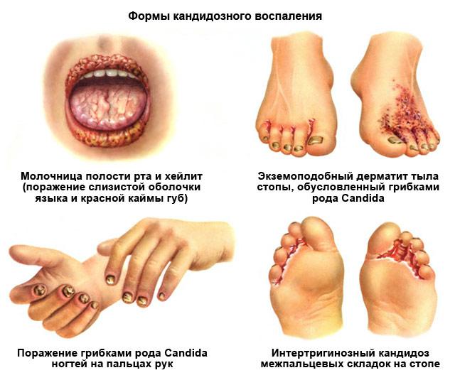 формы кандидозного воспаления