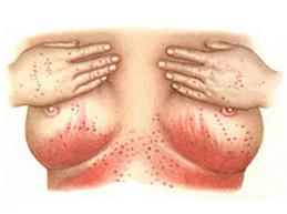Как лечить молочницу в домашних условиях у женщин симптомы