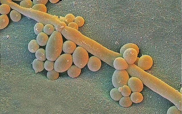 микрофотография колоний грибков рода кандида