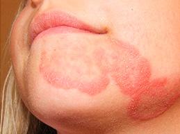 Полная характеристика кандидоза на коже: причины, симптомы и лечение