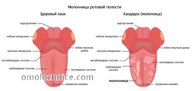 молочница ротовой полости