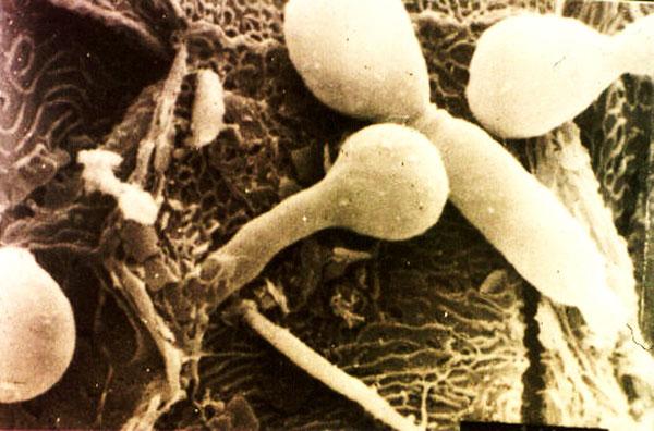 проникновение грибов Кандида в ткани – глубокий кандидоз (увеличенное изображение