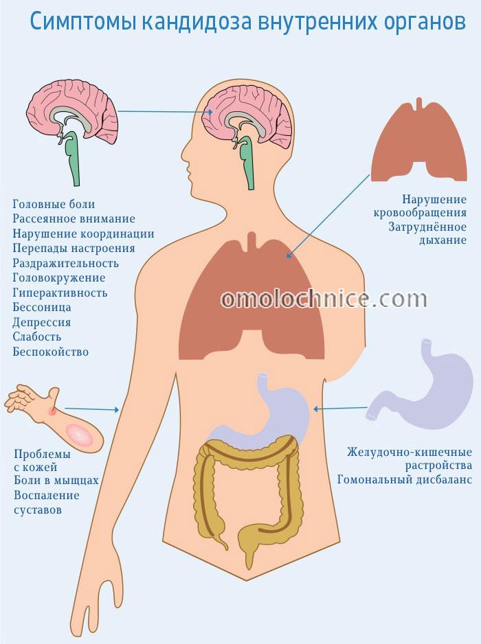 симптомы кандидоза внутренних органов