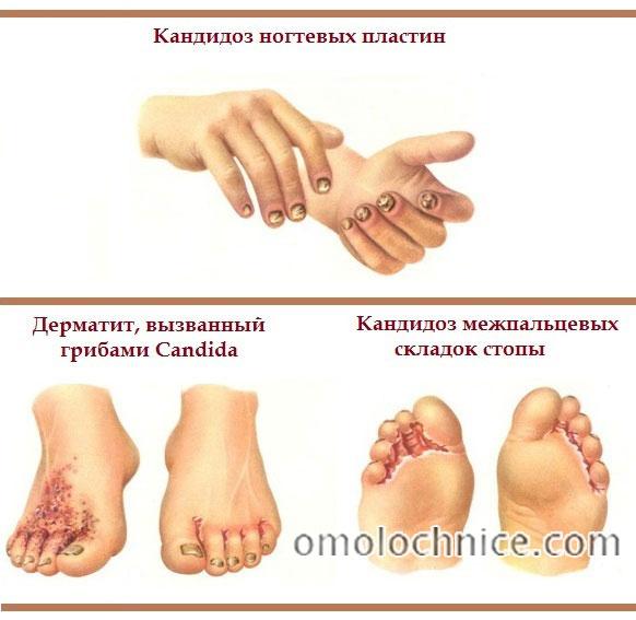 внешние симптомы кандидоза ногтей и кожи стоп