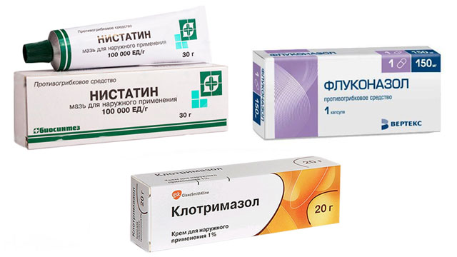 лекарства наружного применения (мазь нистатин, крем клотримазол) и внутреннего (флуконазол)