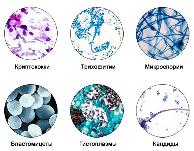 разновидности патогенных грибков