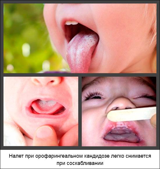 молочница полости рта у детей